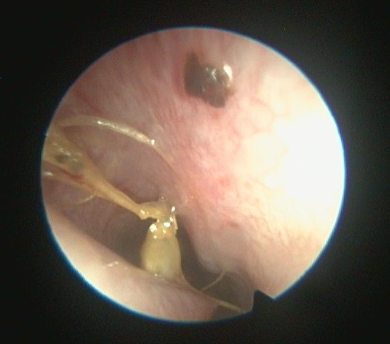 EndoskopieBILD_Granne